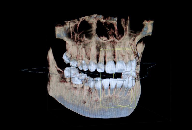 Dreidimensionales Röntgen: Aufnahme vom Gebiss