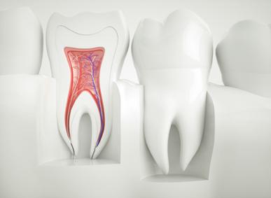Wurzelbehandlung: Illustration einer Zahnwurzel